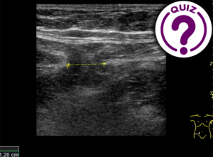 Case of the Month January 2020 - Intermittent pain in the lower right quadrant of the abdomen