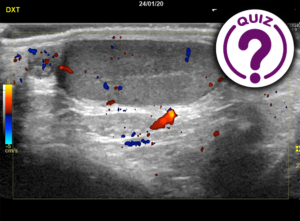 Case of the Month February - Scrotal pain