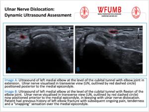 Ultrasound the Best #05: Ulnar Nerve Dislocation:  Dynamic Ultrasound Assessment