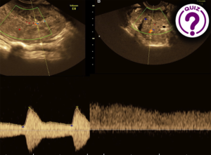 Case of the Month July 2020- A female with an acute onset of severe pain in the lower abdomen