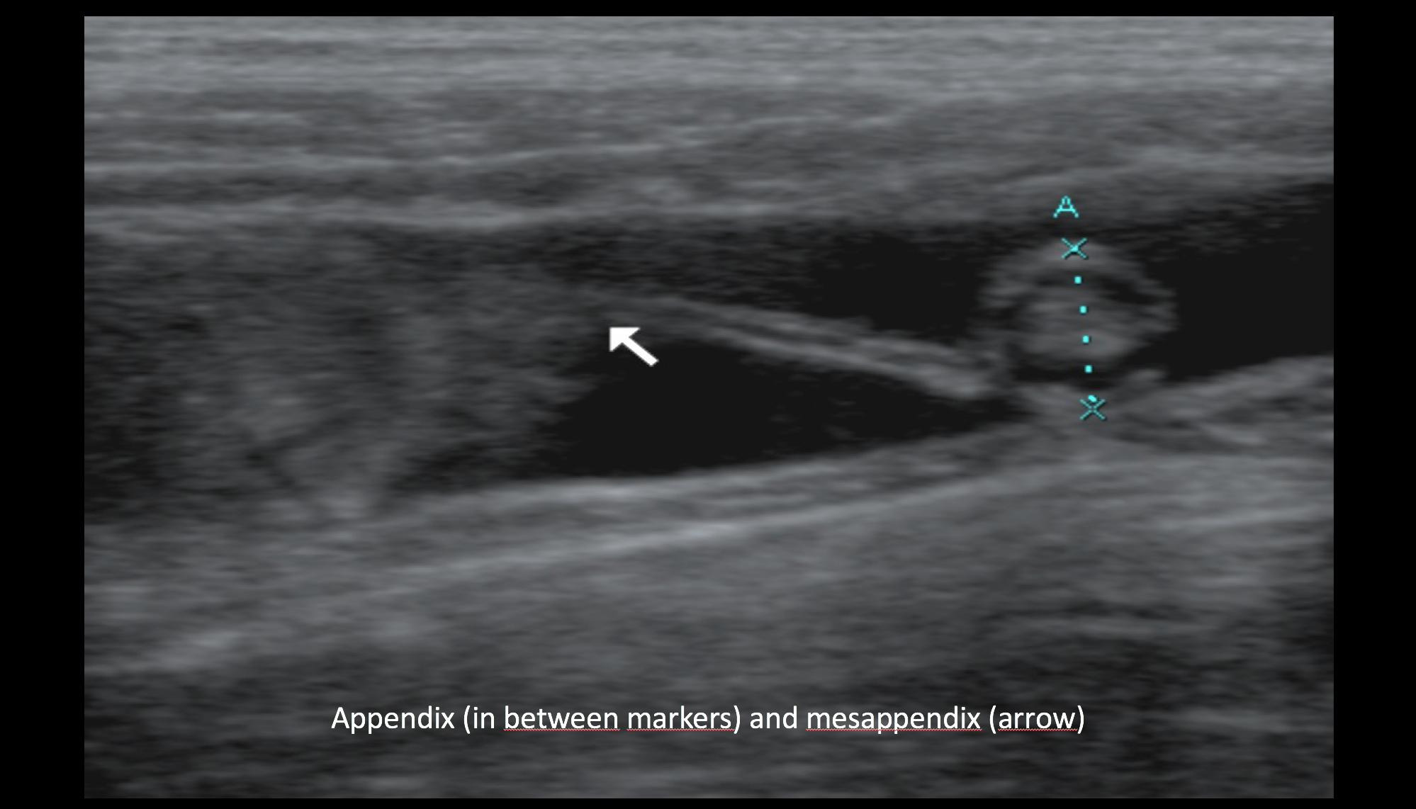 Ultrasound the Best #08: Appendix (in between markers) and mesappendix (arrow)