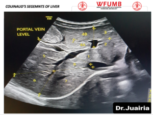 Ultrasound the Best #17: Segments of Liver