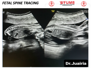 Ultrasound the Best #18: Fetal Spine Tracing