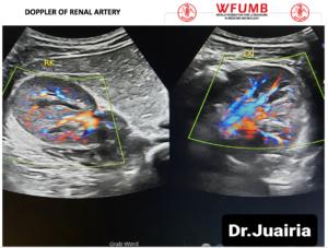 Ultrasound the Best #19: Doppler of Renal Artery