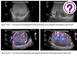 Case of the Month December - Fast enlargement of the right testicle without trauma