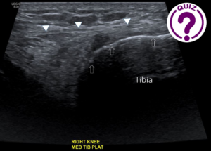 Case of the Month February - Medial knee pain in runner