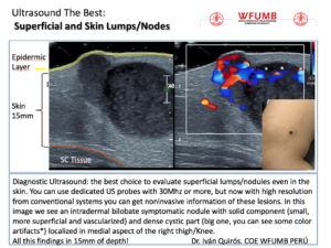 Ultrasound the Best #20: Superficial and Skin Lumps/Nodes