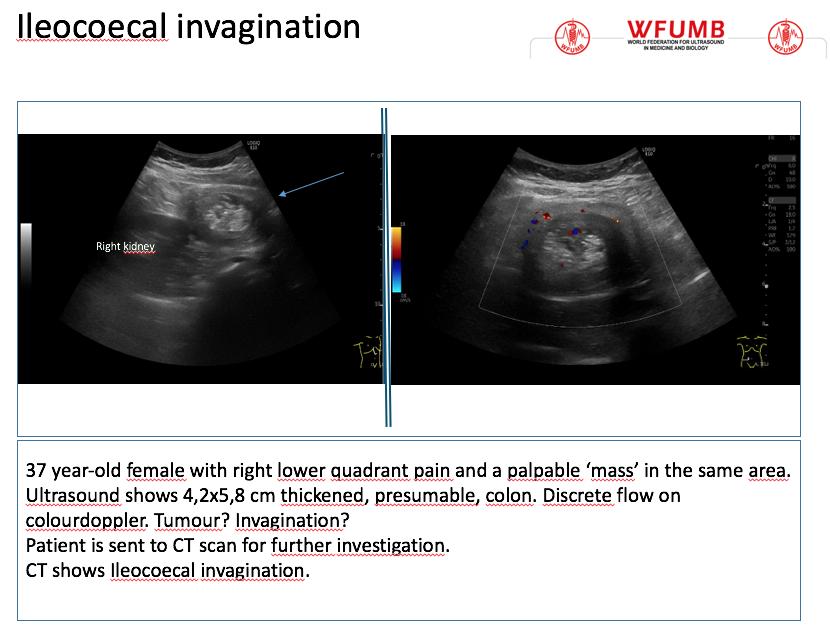 Ultrasound the Best #21: Ileocoecal Invagination